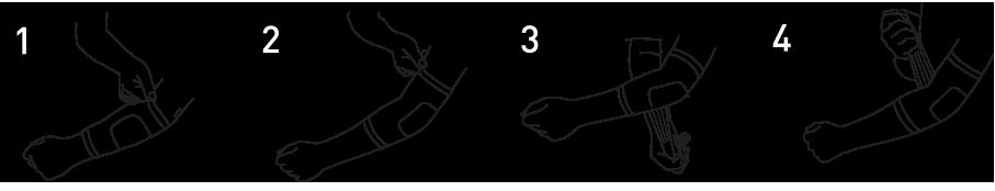 Codera y Banda de epicondilitis. Instrucciones para correcta colocación.