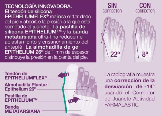 Tecnologías y funcionamiento del corrector de juanete y desgaste de planta del pie de Farmalastic