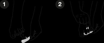 Ratoncitos Subdigitales de Farmalasti: 2 pasos para colocarlos correctamente