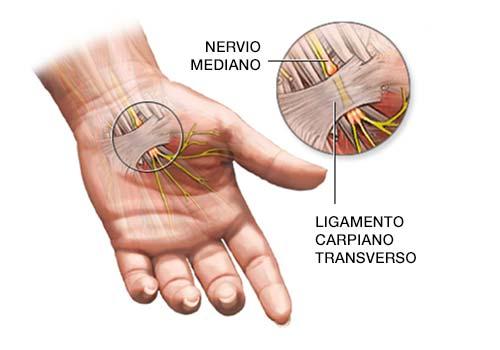mano con nervio y ligamento