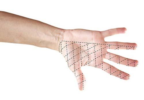 mano con esquema de la patología
