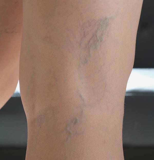 arañas vasculares piernas