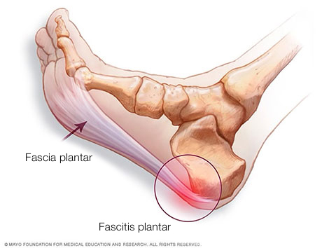 fascia plantar y fascitis plantar