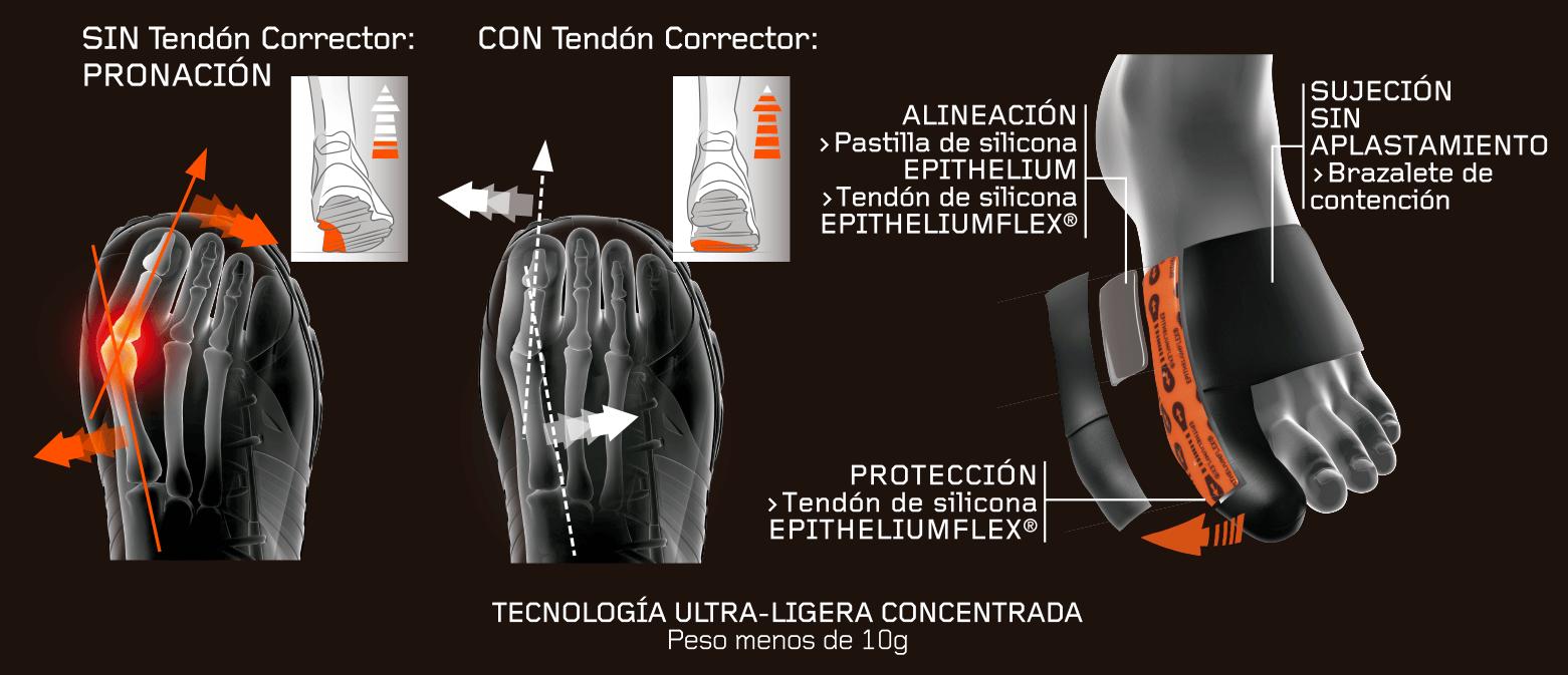 Alineación con pastilla de silicona, protección con tendón de silicona