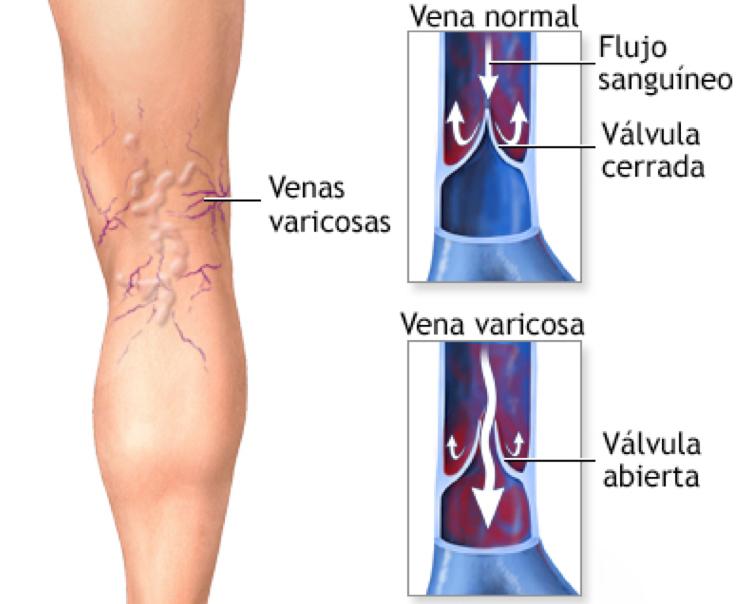 Imagen venas varicosas